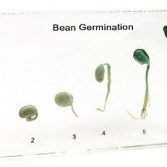 Pupelės augimo fazės